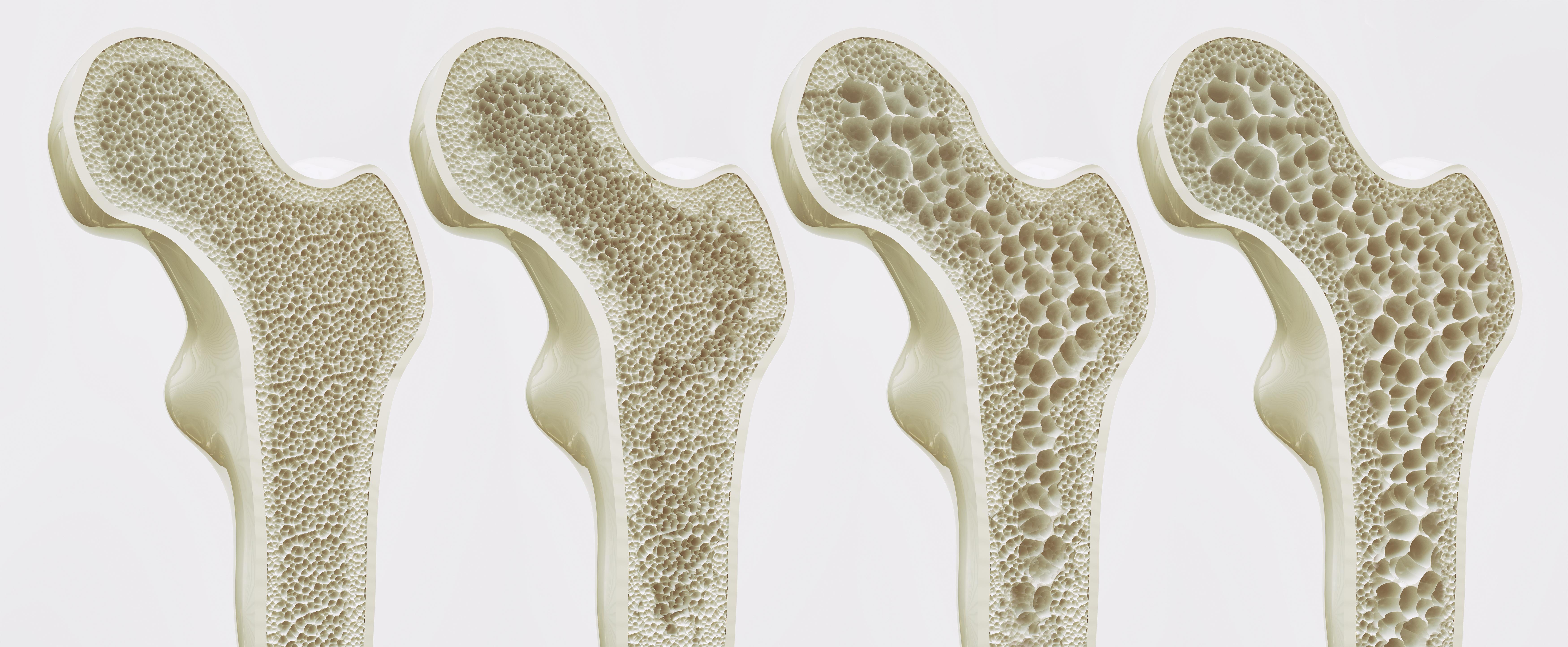 デイサービススタッフ・機能訓練指導員が理解しておくべき「大腿骨頸部骨折」の概要とリハビリの基本