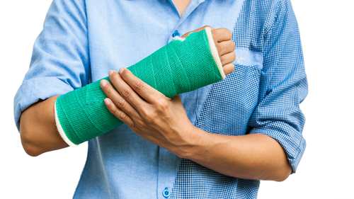 橈骨遠位端骨折とは